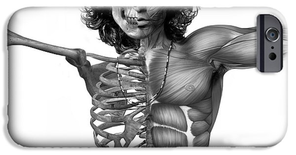 Controversy iPhone Cases - Jims Anatomy iPhone Case by Marian Voicu