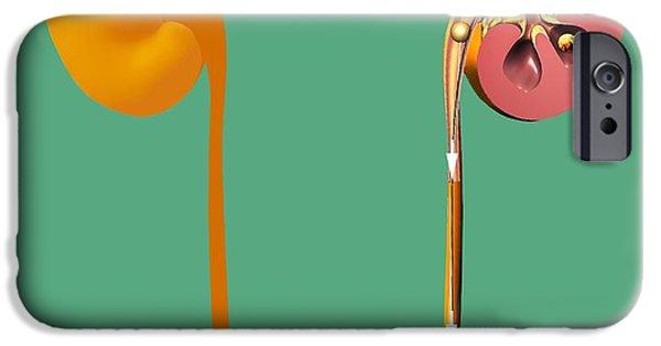 Abnormal iPhone Cases - Kidney Stones, Artwork iPhone Case by Hans-ulrich Osterwalder