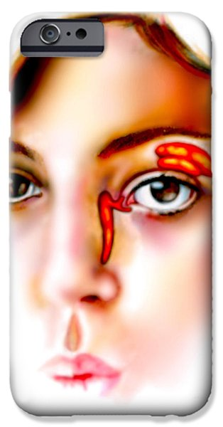Torn iPhone Cases - Lacrimal Apparatus iPhone Case by Gwen Shockey
