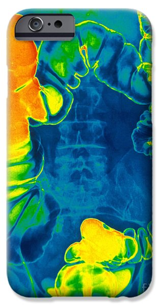 Large Intestine iPhone Cases - Large And Small Intestine, Barium X-ray iPhone Case by Scott Camazine