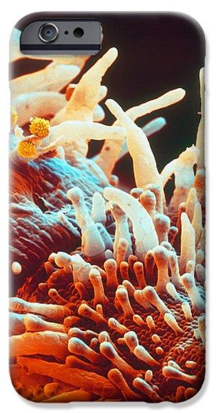 Marigold Petal SEM iPhone Case by Eye Of Science