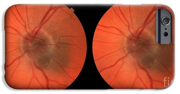Abnormal iPhone Cases - Melanoma Of The Optic Nerve Stereo Image iPhone Case by Paul Whitten