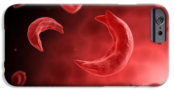 Disorder Digital iPhone Cases - Microscopic View Of Sicke Cells Causing iPhone Case by Stocktrek Images