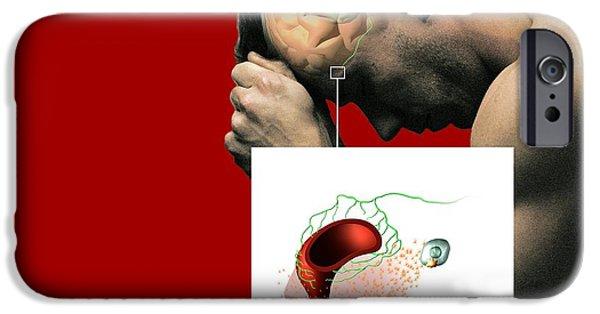 Mechanism iPhone Cases - Migraine Mechanisms, Artwork iPhone Case by Mikkel Juul Jensen / Bonnier Publications