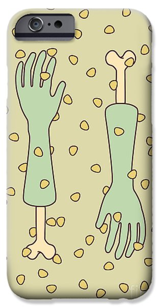 Surgery iPhone Cases - Nip and tuck iPhone Case by Freshinkstain