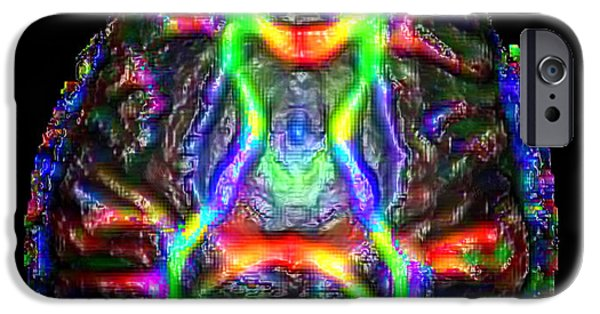 Medical Scan iPhone Cases - Normal Brain Diffusion Tractography iPhone Case by Living Art Enterprises