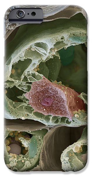 Plant Leaf Section Sem iPhone Case by Eye of Science
