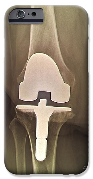 Total Knee Replacement iPhone Cases - Prosthetic Knee And Obesity, X-ray iPhone Case by Zephyr