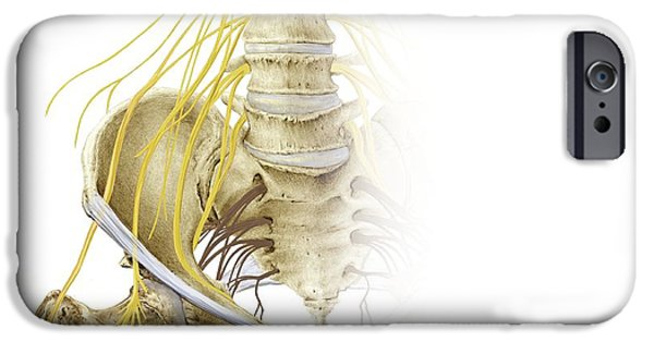 Sacral Plexus iPhone Cases - Right Hip And Nerve Plexus, Artwork iPhone Case by D & L Graphics / Science Photo Library