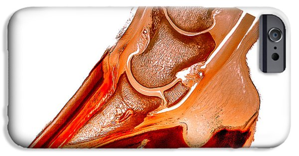 Feet Sculptures iPhone Cases - Ringbone hoof pathology 30156 iPhone Case by Christoph Von Horst