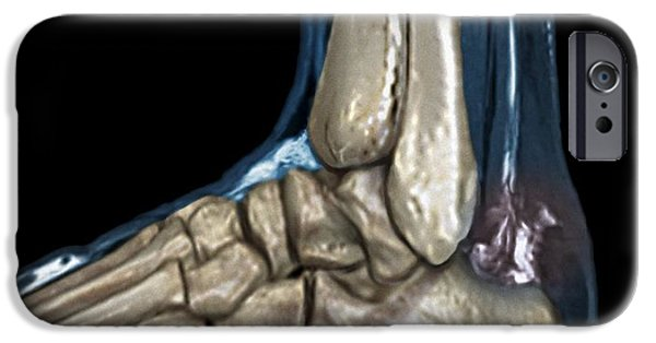 Torn iPhone Cases - Ruptured Achilles Tendon, Mri iPhone Case by Zephyr