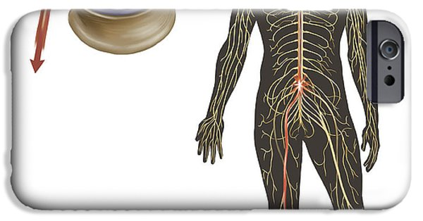Disc iPhone Cases - Sciatica Caused From Herniated Disc iPhone Case by TriFocal Communications