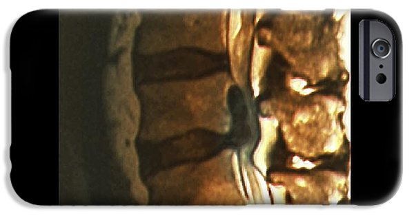 Disc iPhone Cases - Sciatica, Mri Scan iPhone Case by Zephyr