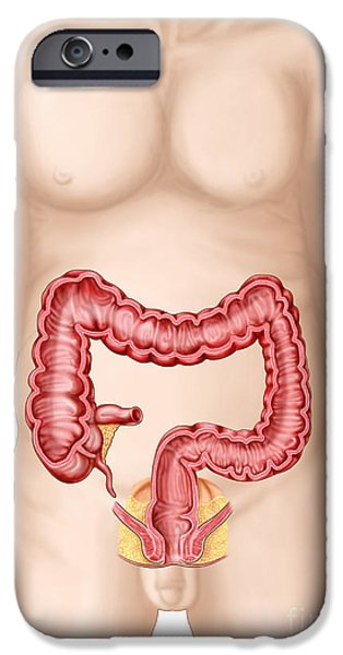 Sigmoid Colon iPhone Cases - Sectional View Of Large Intestine iPhone Case by Stocktrek Images