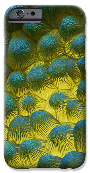 Sem Of Rapeseed Flower iPhone Case by Eye of Science