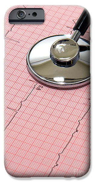 Diagnosis iPhone Cases - Stethoscope over EKG iPhone Case by Olivier Le Queinec