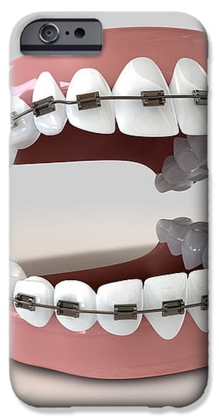 Teeth Fitted With Braces iPhone Case by Allan Swart
