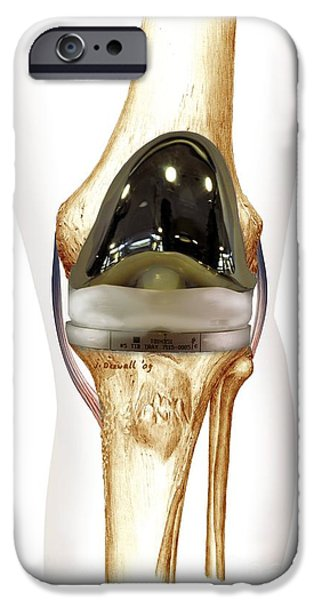 Total Knee Replacement iPhone Cases - Total Knee Replacement, Artwork iPhone Case by D&L Graphics