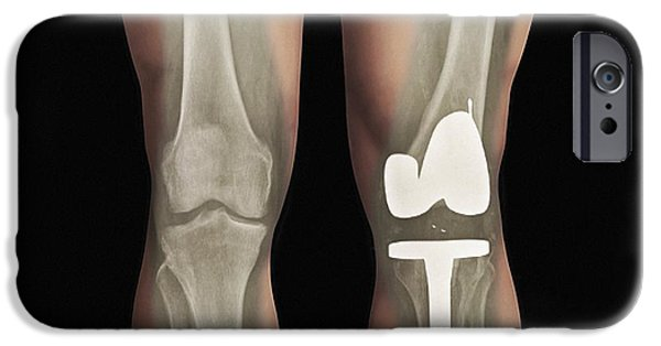 Abnormal iPhone Cases - Total Knee Replacement, X-ray iPhone Case by Zephyr