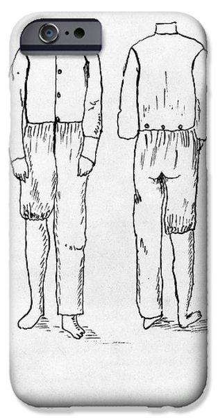 WOMENS UNDERGARMENT, 1878 iPhone Case by Granger