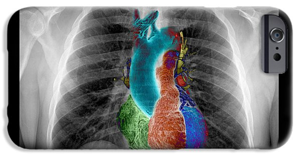 Pictures Of Cats Photographs iPhone Cases - X-ray Of Chest And Heart iPhone Case by Living Art Enterprises