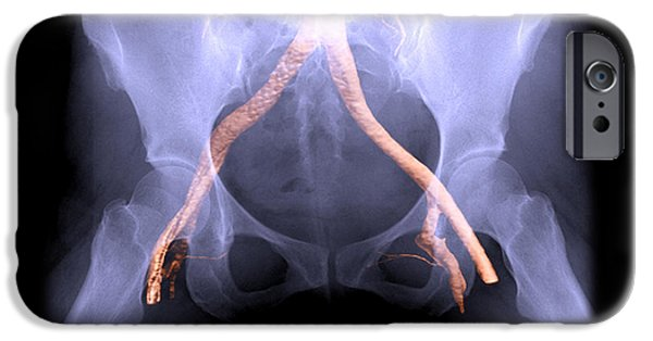 Pictures Of Cats Photographs iPhone Cases - X-ray Of Pelvis With Arteries iPhone Case by Living Art Enterprises