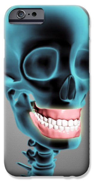 X-ray View Of Human Skeleton Showing iPhone Case by Stocktrek Images