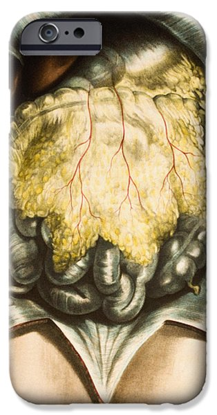 Intestines iPhone Cases - Abdominal Organs iPhone Case by Mehau Kulyk