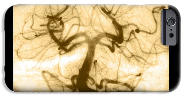 Abnormal iPhone Cases - Angiogram Of Embolus In Cerebral Artery iPhone Case by Medical Body Scans