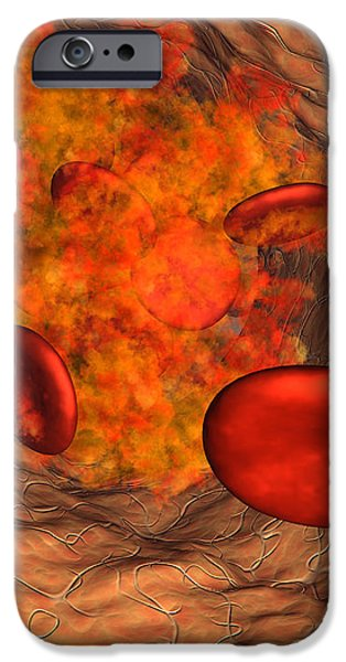 Blood Clot iPhone Case by Roger Harris