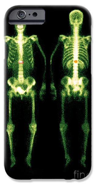 Abnormal iPhone Cases - Bone Scan iPhone Case by Medical Body Scans
