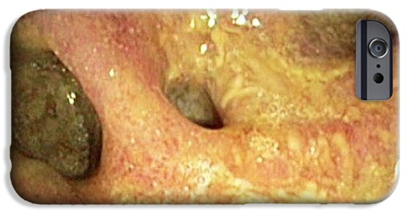 Sigmoid Colon iPhone Cases - Bowel Disease In The Colon iPhone Case by Gastrolab