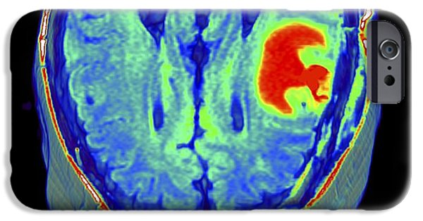 3-d iPhone Cases - Brain Tumour, 3d-mri Scan iPhone Case by Pasieka