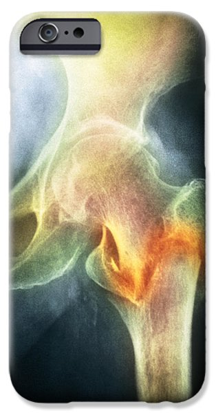 Disorder iPhone Cases - Coloured X-ray Of Femur Fracture In Osteoporosis iPhone Case by Medical Photo Nhs Lothian