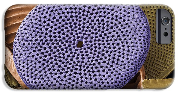 Diatoms iPhone Cases - Diatoms, Sem iPhone Case by Steve Gschmeissner