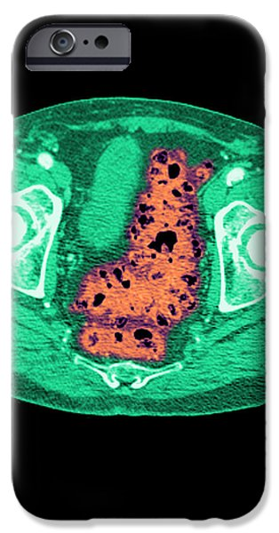 Diverticulosis iPhone Case by Medical Body Scans