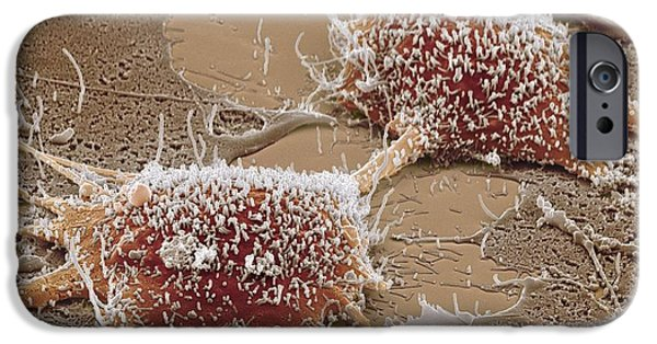 Abnormal iPhone Cases - Dividing Cancer Cell, Sem iPhone Case by Steve Gschmeissner