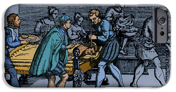 Neurosurgeon iPhone Cases - Earliest Depiction Of Craniotomy iPhone Case by Photo Researchers