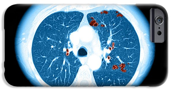 Abnormal iPhone Cases - Emphysema On Ct Chest iPhone Case by Medical Body Scans