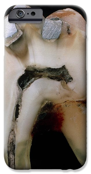 Disorder iPhone Cases - Extracted Molar iPhone Case by Dr Jeremy Burgess