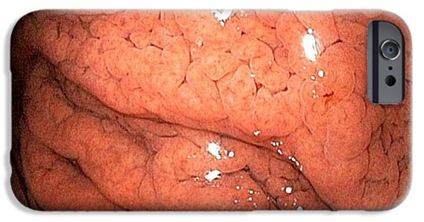 Endoscopy iPhone Cases - Gastritis From Helicobacter Pylori iPhone Case by Gastrolab
