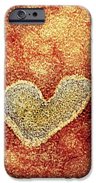 Flu iPhone Cases - H5n1 Avian Influenza Virus Particle, Tem iPhone Case by Nibsc