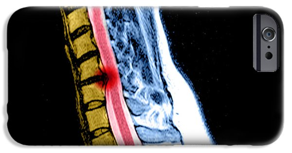 Disc iPhone Cases - Herniated Disc In Cervical Spine iPhone Case by Medical Body Scans