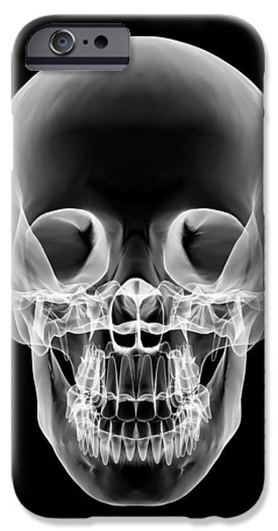 Human Skull, X-ray Artwork iPhone Case by Pasieka