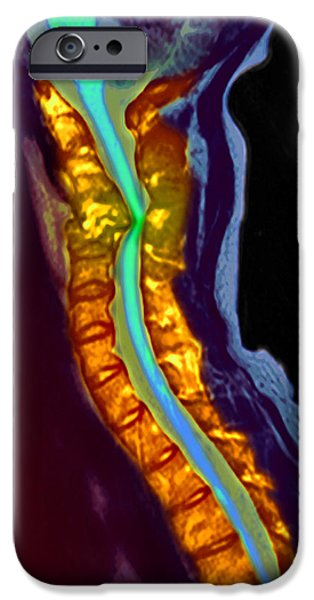 Disc iPhone Cases - Inflamed Spinal Discs, Mri Scan iPhone Case by Du Cane Medical Imaging Ltd