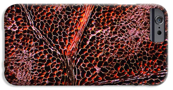 Indian Ink iPhone Cases - Leaf Anatomy, Light Micrograph iPhone Case by Dr Keith Wheeler