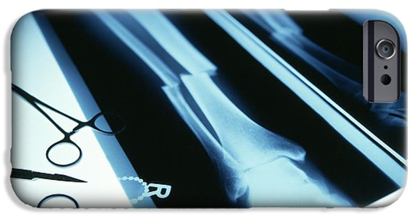 Tweezers iPhone Cases - Leg Fracture, X-ray iPhone Case by Tek Image