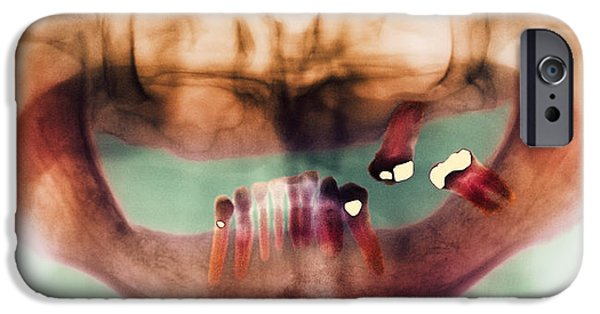 Missing Teeth iPhone Cases - Loss Of Teeth, X-ray iPhone Case by