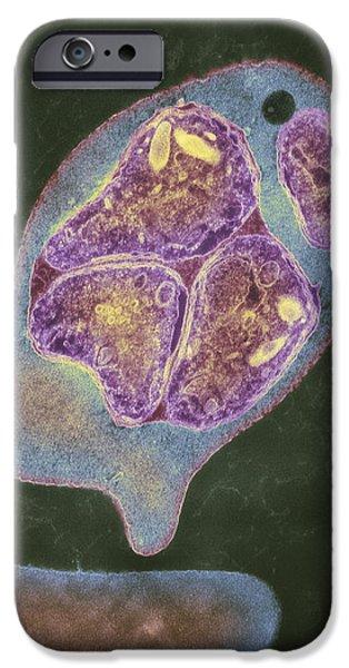 Histopathology iPhone Cases - Malaria Parasite, Tem iPhone Case by London School Of Hygiene & Tropical Medicine