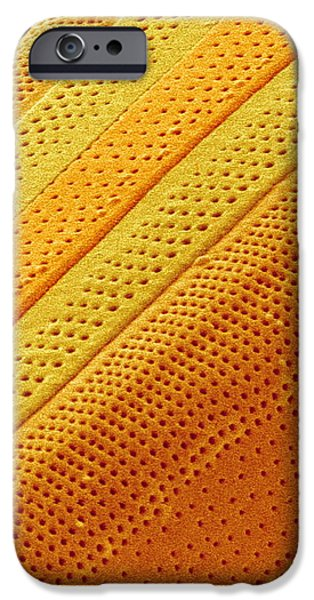Marine Diatom Alga, Sem iPhone Case by Susumu Nishinaga